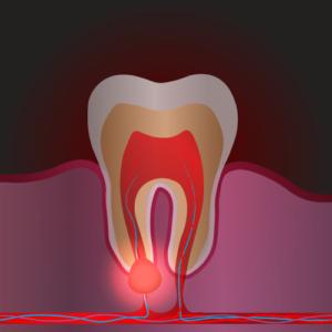 cura e cause ascesso dentale