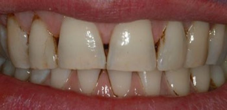 prima delle faccette dentali