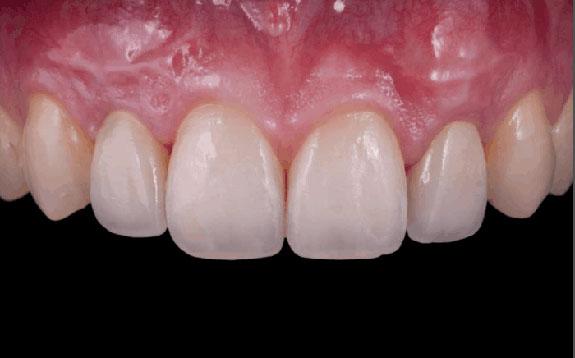 Risultato implantologia dentale