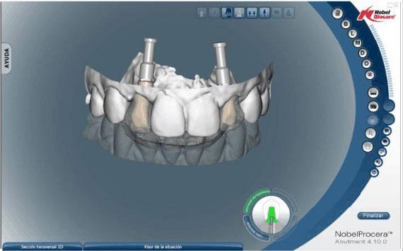 Implantologia dentale progettazione