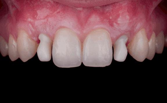 Implantologia dentale zirconio