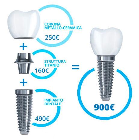 costo impianto dentale firenze
