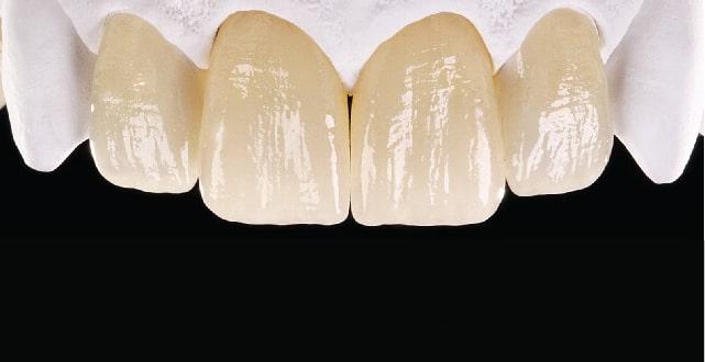 finitura protesi dentale fissa