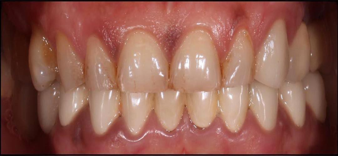 installazione faccette dentali