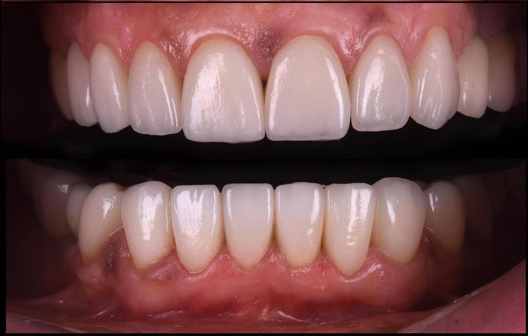 risultato faccette dentali