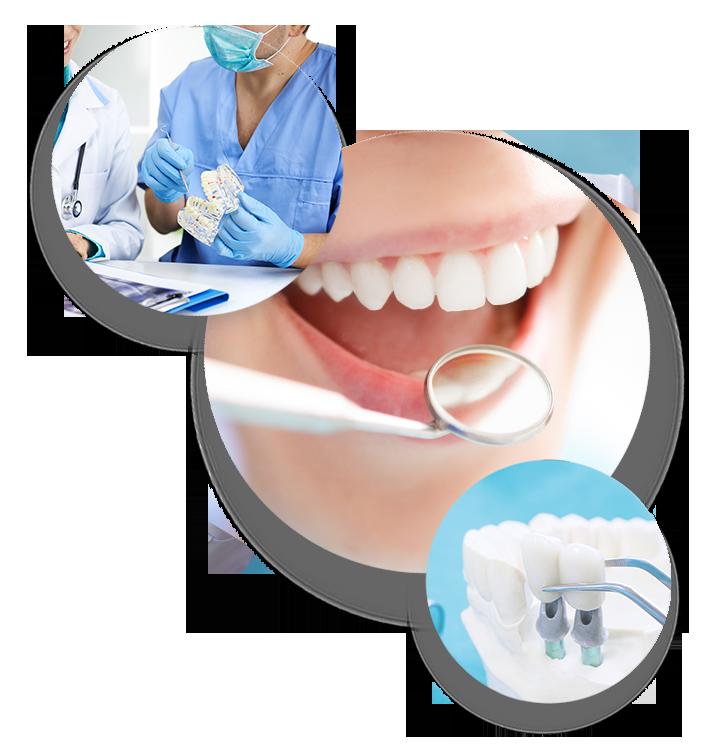 vantaggi implantologia clinica odontoiatrica ireos
