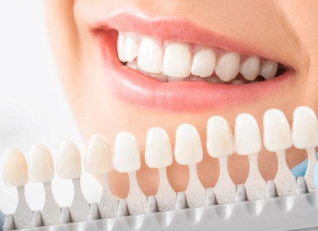 Cosa sono le faccette dentali