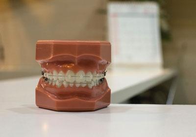 apparecchio denti per ortodontia