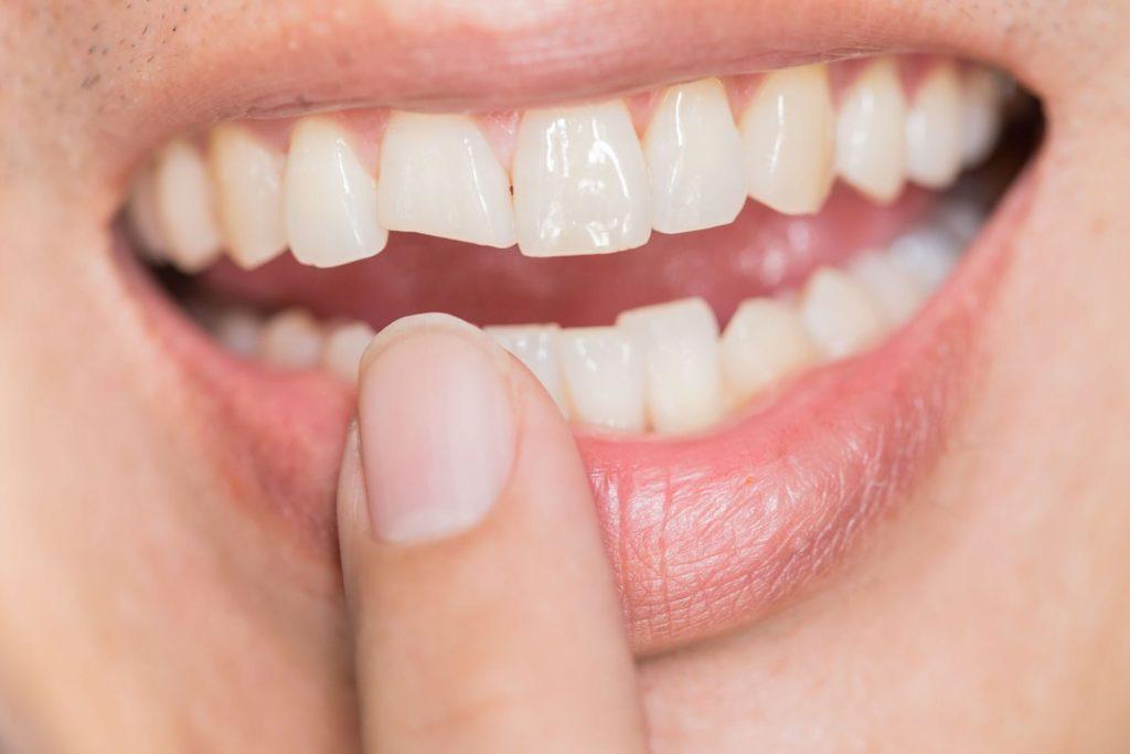 fratture dentali