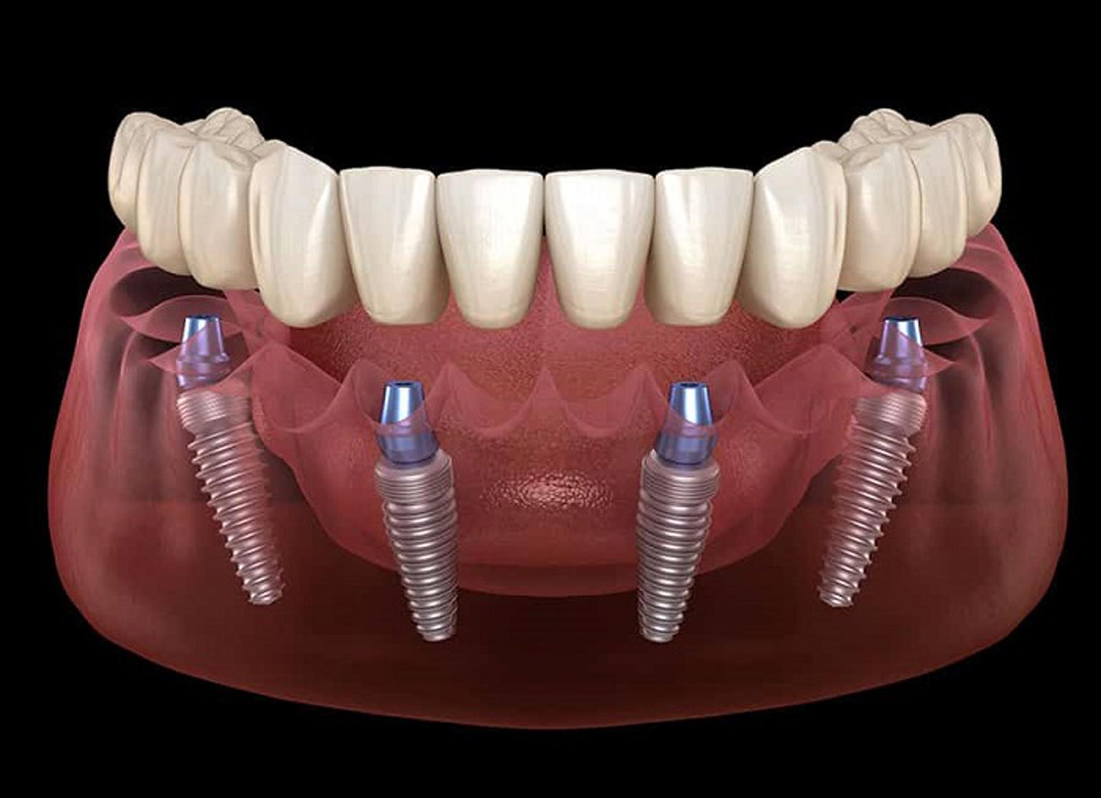 impianti dentali all in 4