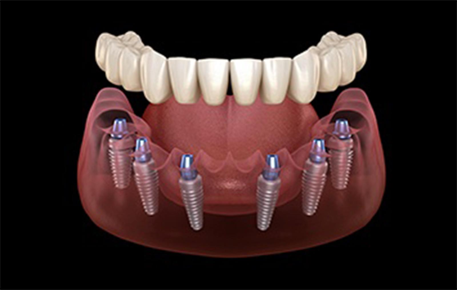 impianto dentale all in 6