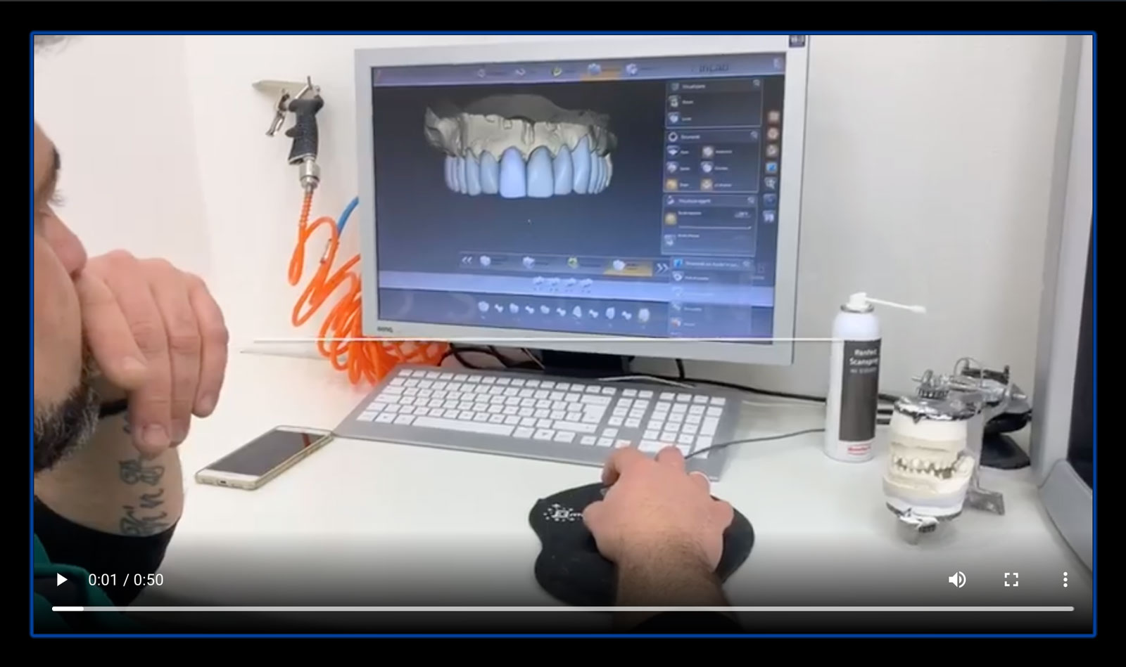 tecnico implantologo eseguo analisi implantologa guidata a computer