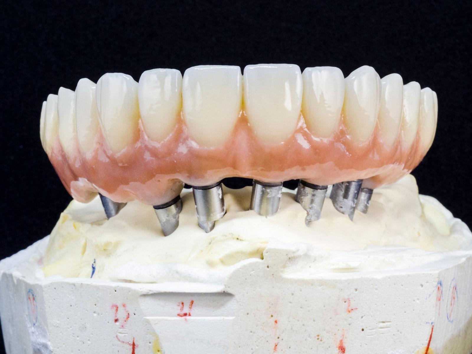 installazione protesi fissa su impianto