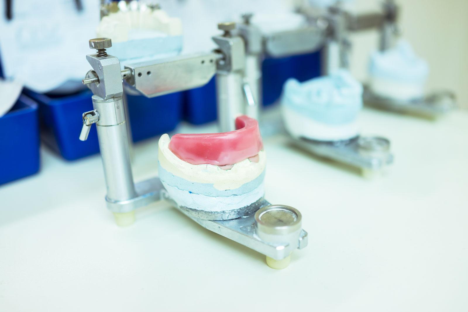 preparazione in laboratorio della protesi mobile