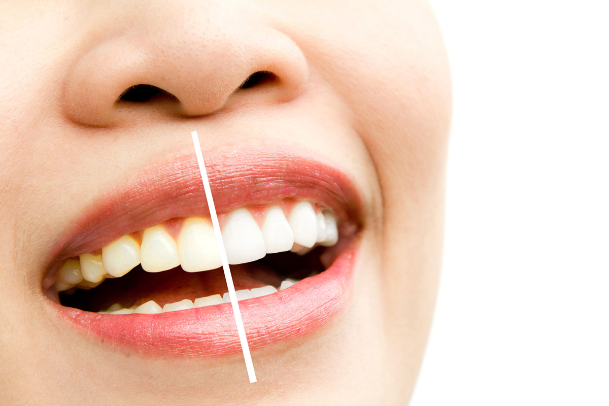 sbiancamento dei denti a Firenze