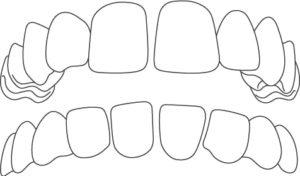 spazio fra i denti