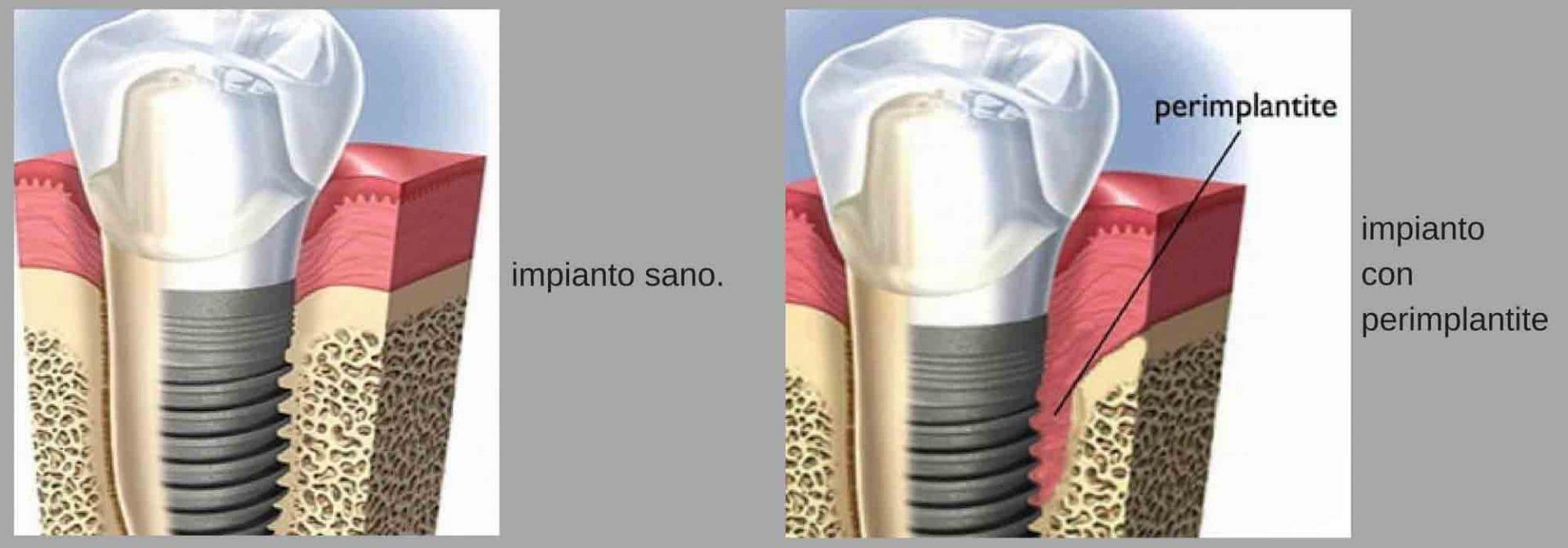 perimplantite impianto dentale