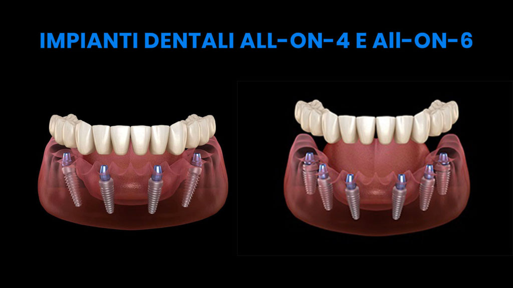 impianti dentali all-on-4 e impianti dentali all-on-6