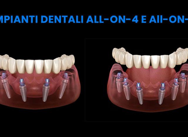 impianti dentali all-on-4 e impianti dentali all-on-6