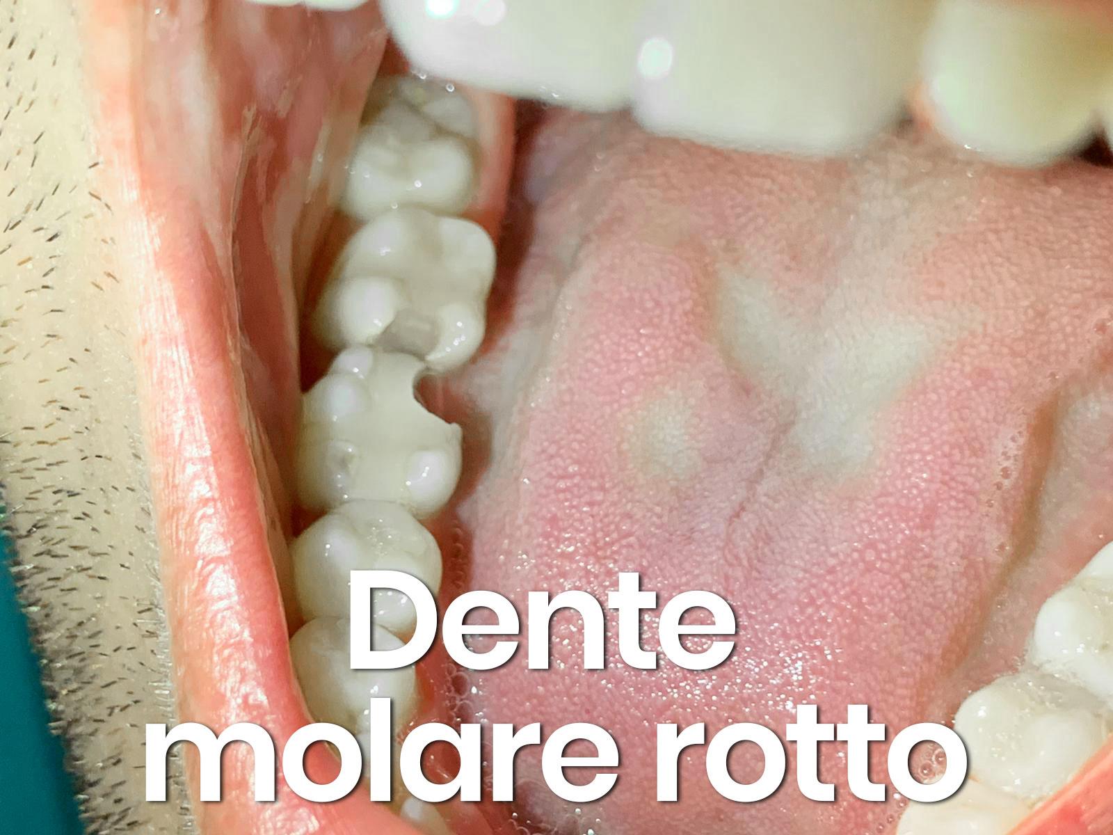 dente molare spezzato