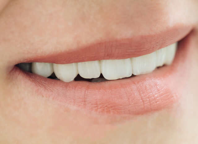 differenza tra corone e ponti dentali