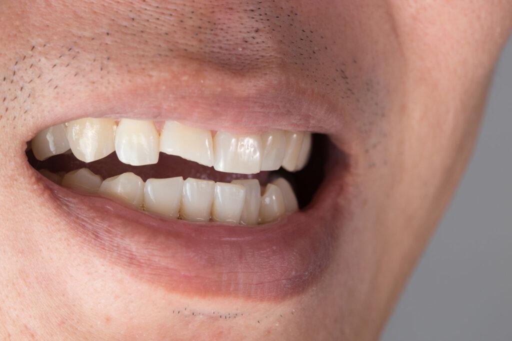 ricostruire un dente spezzato