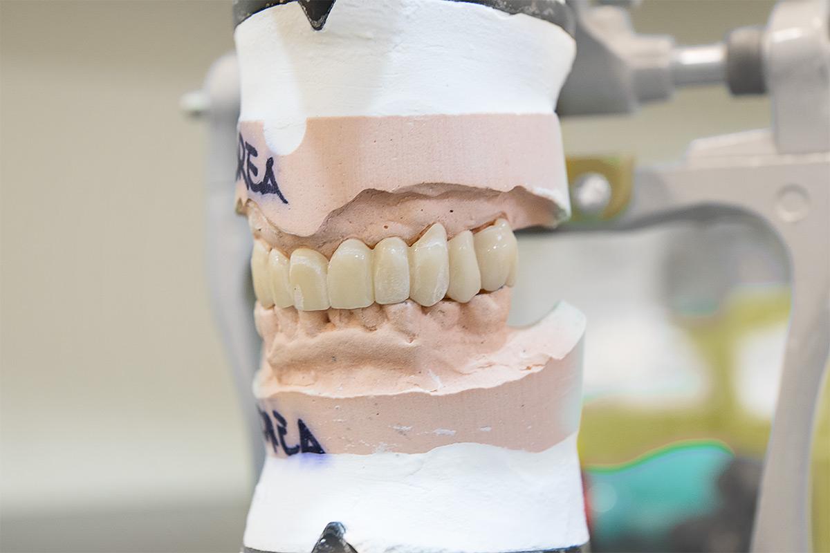 denti fissi in 24h meno di un giorno