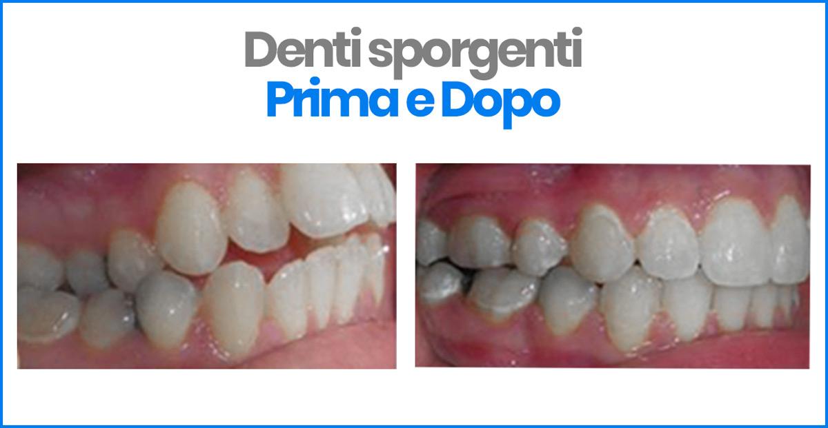 prima e dopo denti sporgenti