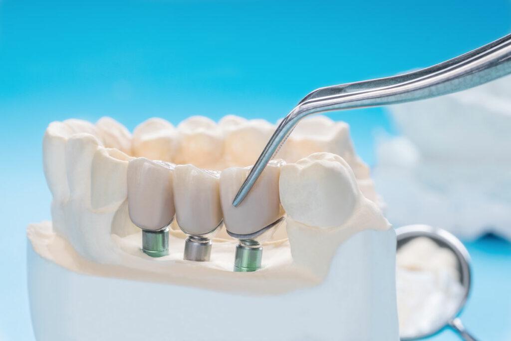 corona dentale su impianto