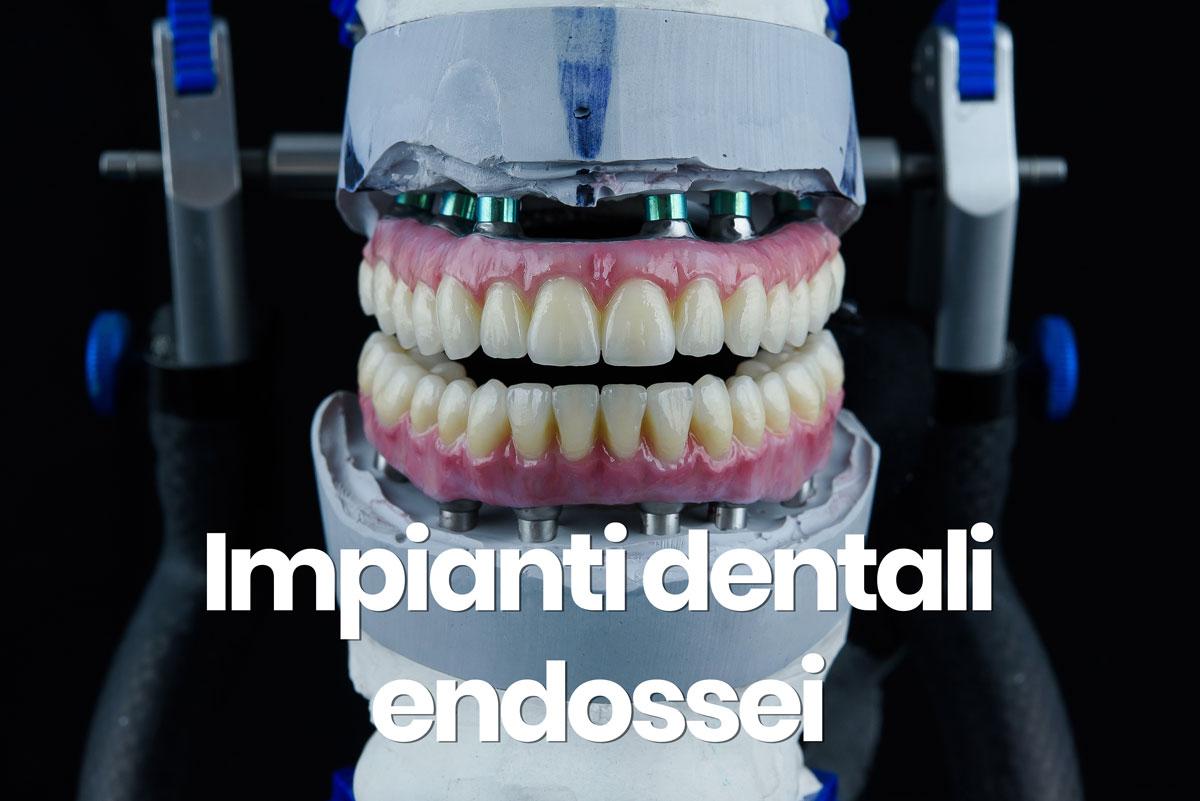 impianti dentali endossei