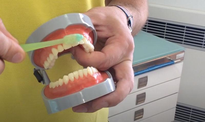 denti superiori