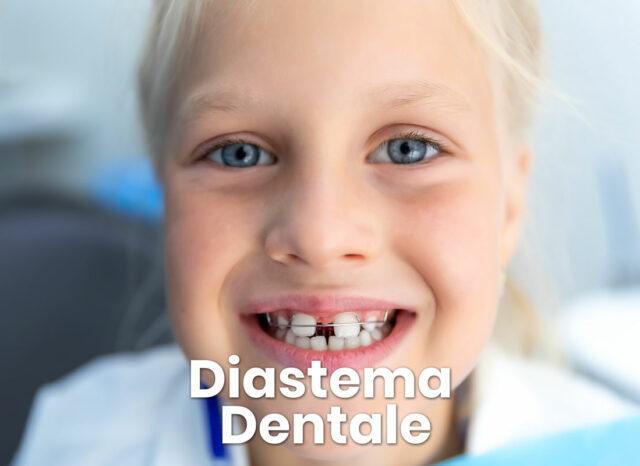 diastema dentale