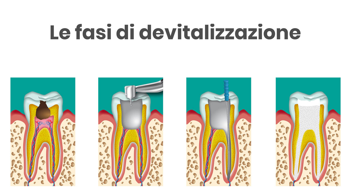 le fasi di devitalizzazione di un dente