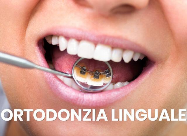ortodonzia linguale