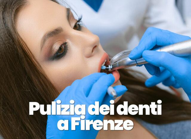 pulizia dei denti professionale a Firenze