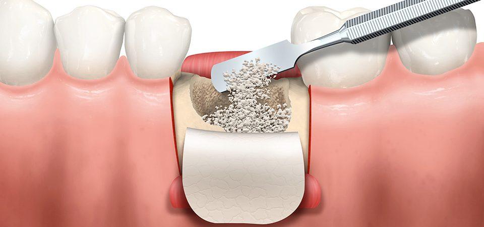 rigenerazione ossea denti