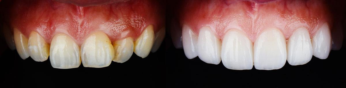 denti gialli prima e dopo