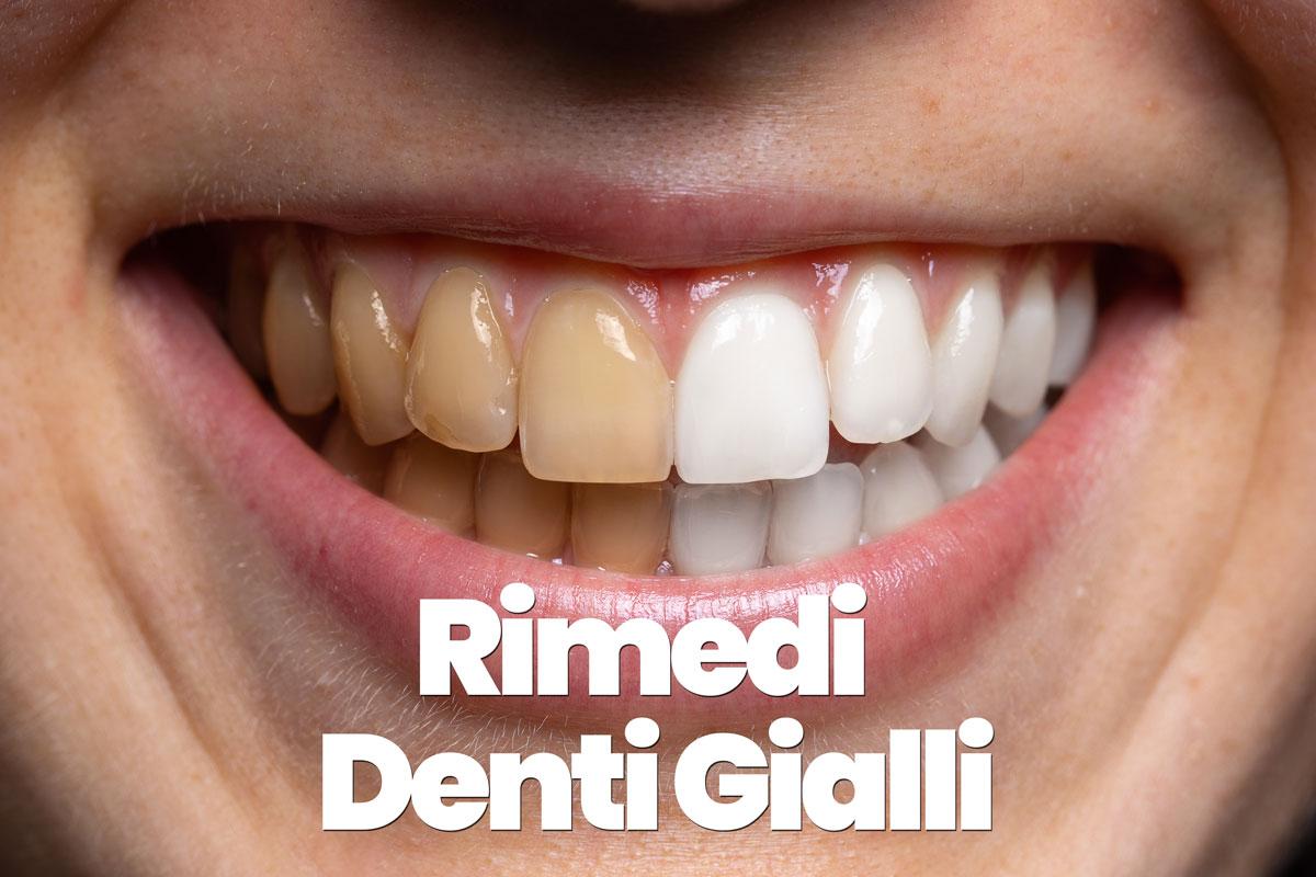 rimedi per i denti gialli