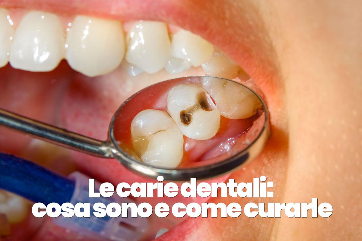 cosa sono le carie dentali e come curarle