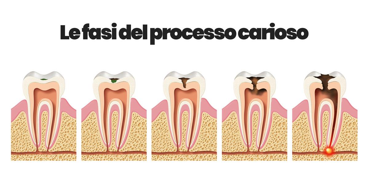 fasi delle carie dentali