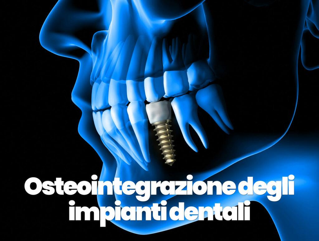 osteointegrazione degli impianti dentali