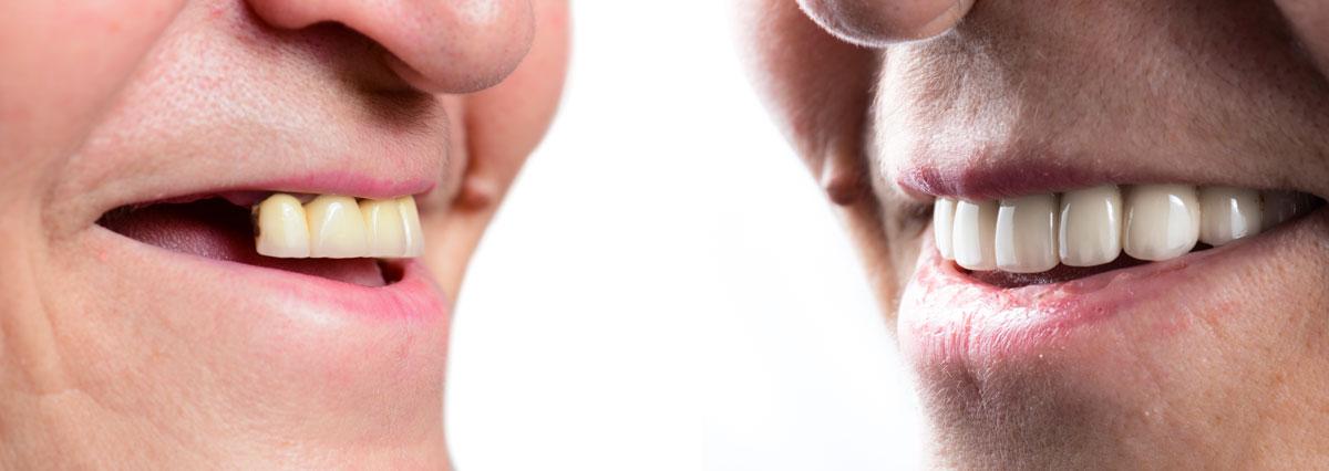 rifarsi i denti