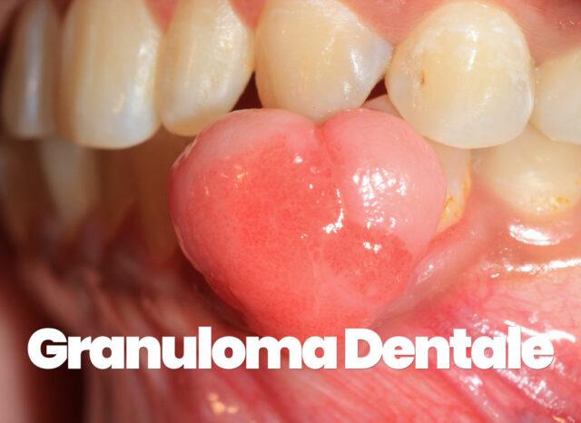 Cos'è il granuloma dentale: cause, sintomi e cura