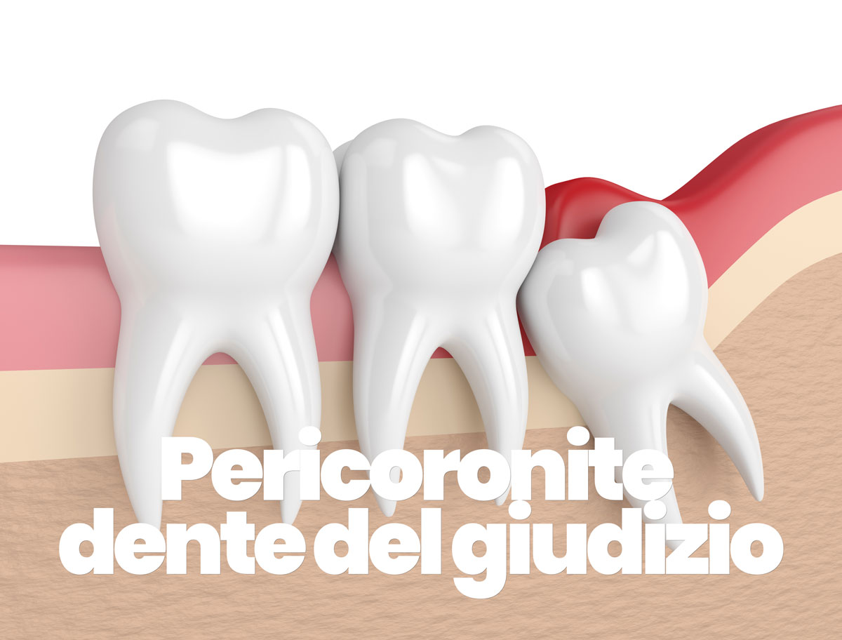 curare la pericoronite del dente del giudizio
